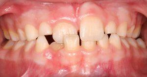 Example of teeth crossbite