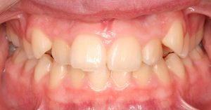 Example of teeth crowding