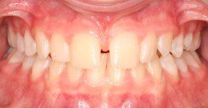 example of diastema
