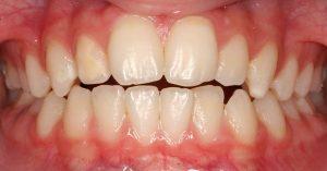 example of openbite