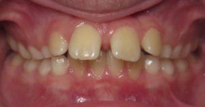 example of overjet teeth