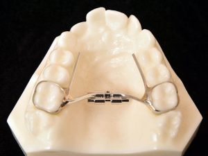 example of rapid palatal expansion